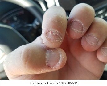 nasty disgusting bitten and peeling fingernails in car