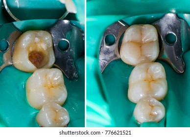 Natural looking dental filling before and after series.