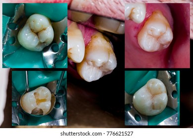 Natural looking dental filling before and after series upper molar.
