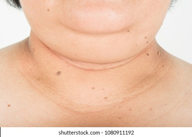 Neck and chin fat people and skin  black spots