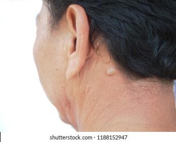 Neck is sebaceous cyst.