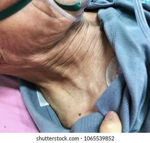 neck vein engorge in pulmonary edema patient