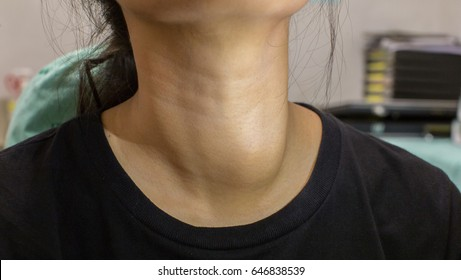 Neck of a young Asian woman in black shirt with enlarged thyroid gland