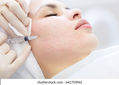 Needle mesotherapy in beauty spa salon or clinic. Cosmetics been injected to woman's face, close up portrait