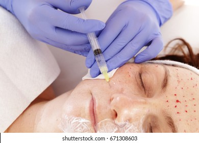 Needle Mesotherapy. Skin regeneration