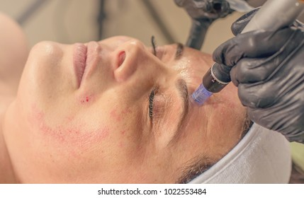 Needle mesotherapy treatment on a woman face.