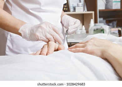 Needles in hands at acupuncture procedure. Traditional Chinese medicine used widely for general well-being treatment. Horizontal closeup shot