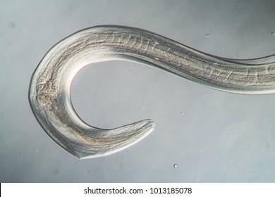 Nematode Parasitic Worm 100x