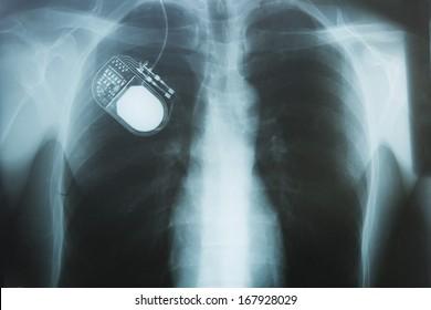 Nerve Stimulator, X-Ray