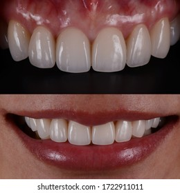 New beautiful smile with dental veneers. Intra oral and closeup perfect female smile.