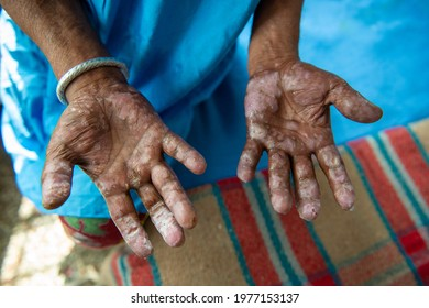New Delhi, India- 22 february 2020: closeup hand Palm of indian old man suffering from leprosy in india, Leprosy patients in a urban area of new delhi,