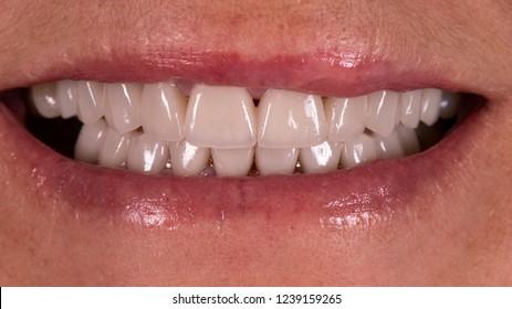new smile with dental veneers
