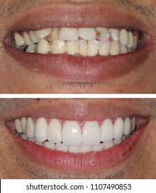 New smile with porcelain crowns and veneers