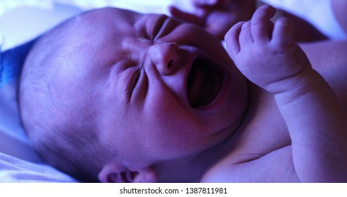 Newborn baby crying while getting treated for jaundice under a phototherapy lamp