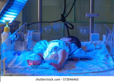 Newborn baby with hyperbilirubinemia under blue UV light for phototheraphy on infant warmer in neonatal intensive care unit