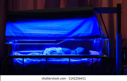 Newborn baby with neonatal jaundice and high bilirubin hyperbilirubinemia under blue UV light for phototheraphy.
