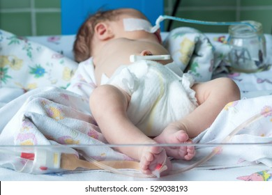 Newborn baby with orogastric tube and pulse oximeter sensor on infant warmer system in neonatal intensive care unit