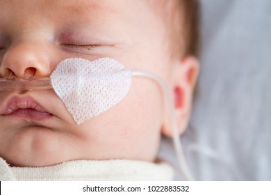 Newborn baby weakened with bronchitis is getting oxygen via nasal prongs to assure oxygen saturation