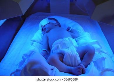 Newborn with jaundice under ultraviolet light