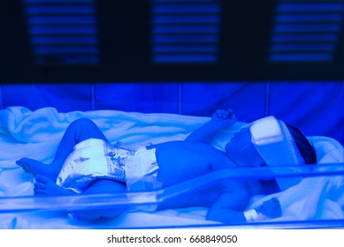 Newborn was treated by Phototherapy,blue neon light,asian baby body yellow,Faded blood.