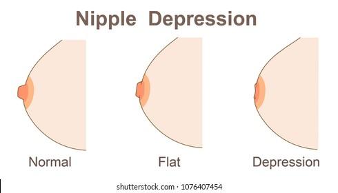 Nipple  depression  shape