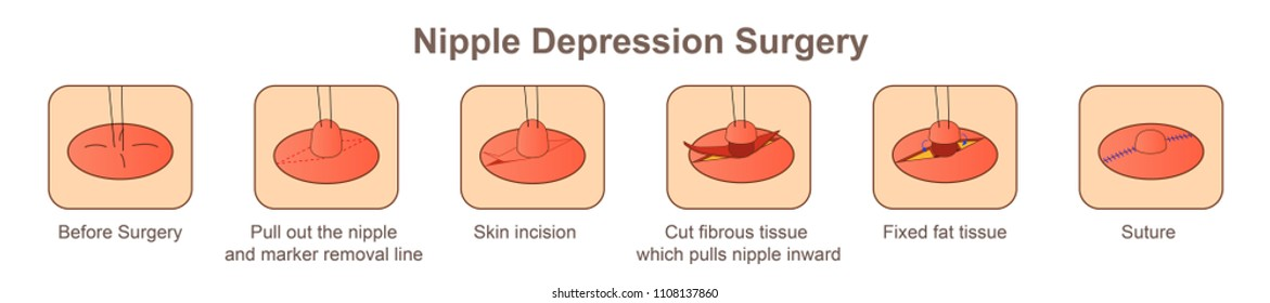 Nipple depression Surgery