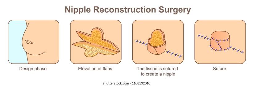Nipple Reconstruction Surgery