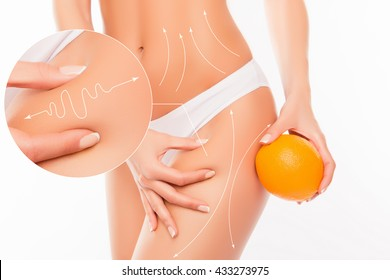 No to cellulite! Close up photo collage of woman  showing her skin body with arrows and  holding orange near hip