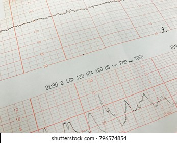 non stress test graph the baby's heart beats or electrocardiograph and mother uterine contraction during delivery or birth in delivery or labor room at hospital. Medical concept.