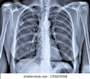 normal chest x-ray, diagnosis of pneumonia