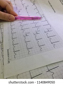 Normal Electrocardiograph Pattern