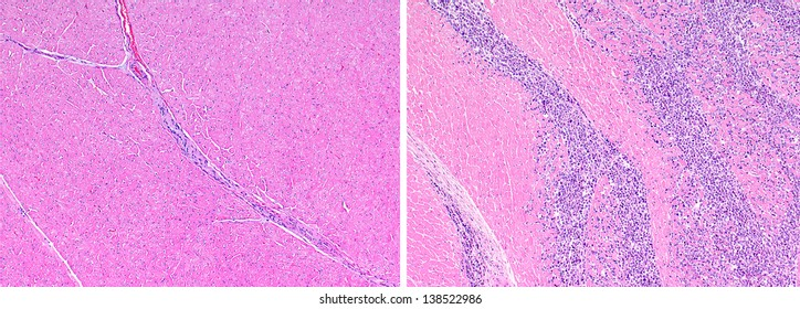Normal healthy heart tissue (left) compared to heart muscle with metastatic lymphoma (right). The cardiac muscle is replaced by infiltrating neoplastic (tumor) cells that are stained blue.