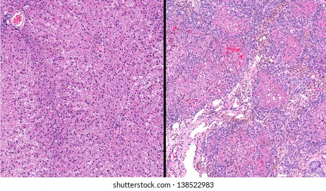 Normal healthy liver (left) compared to unhealthy diseased liver (right) with hepatic cirrhosis.