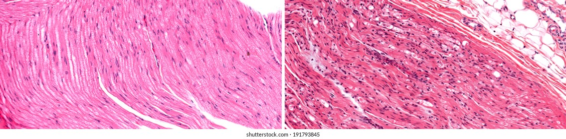 Normal healthy nerve (left) compared to nerve with axonal degeneration of the nerve fiber (right) showing nerve injury. Wallerian degeneration of nerve fibers.