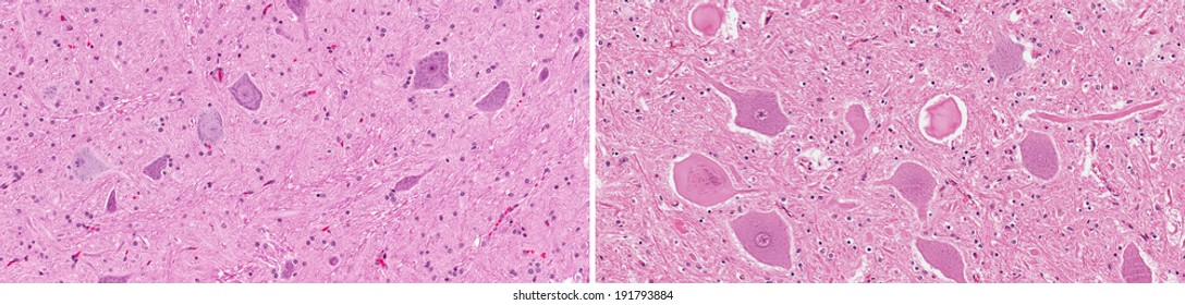 Normal healthy spinal cord neurons (left) compared to diseased neurons displaying neuronal degeneration and large swollen axons and axonal spheroids (right)