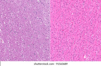 Normal healthy white matter of brain (left) in contrast to white matter of brain from a case of gliomatosis cerebri (right)