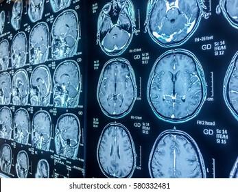 Normal MRI brain study