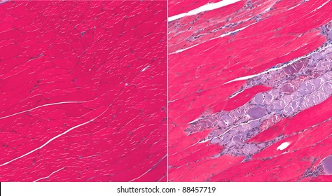 Normal muscle (left) and muscle from Muscular Dystrophy (right) showing degeneration and necrosis of fibers (blue/gray fibers)