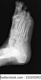 normal radiography of the foot bones