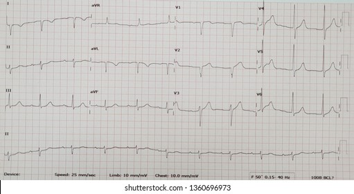 Normal sinus rhythm with arm lead reversal.