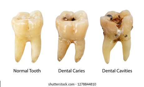 Normal tooth , Dental caries and Dental cavity with calculus . Comparison between difference of teeth decay stages . White isolated background . Front side view .