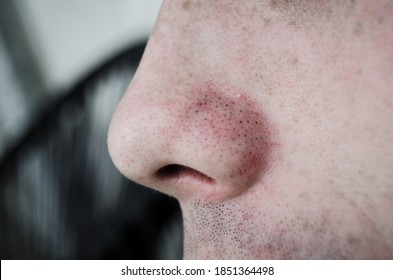 A Nose Full Of Acne And Blackheads