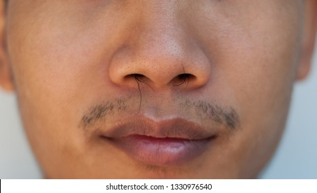 The nose of a man with long nose hair comes out. The long nose hair comes out of the nose.