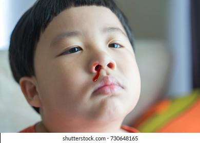 Blood Nose Images, Stock Photos & Vectors | Shutterstock