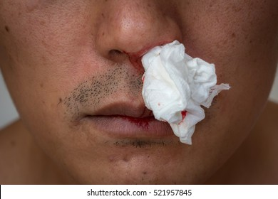 nosebleed , A man is bleeding from his nose.