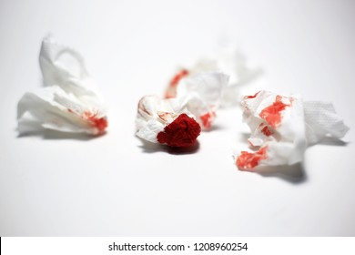 Nosebleed in tissue paper blood from nose cause drying of the nasal membranes and nose picking or accident on your face.