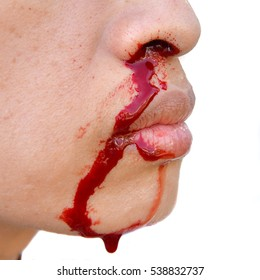 nosebleed , woman is bleeding from her nose.