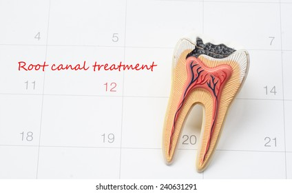 A note of a dentist appointment on a calendar, Root canal treatment
