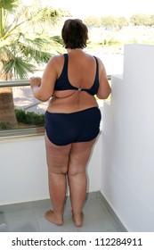 Obese woman in bikini standing on a balcony