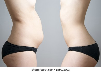 Obesity before after. Young woman's body on gray background.